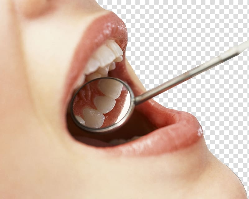dental extraction in Port Charlotte